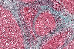 Illustration: Micrograph showing cirrhosis. Trichrome stain. –Wikipedia.