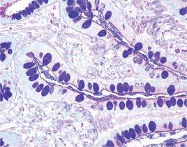 Colon stained with Alcian Blue/PAS