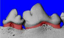 2b boneteeth