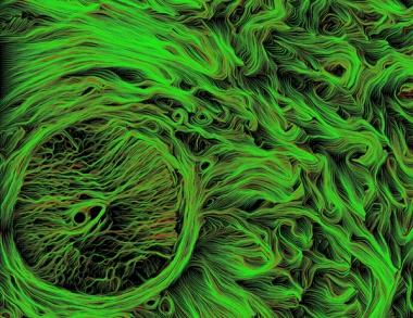 Fibers of Human Optic Nerve