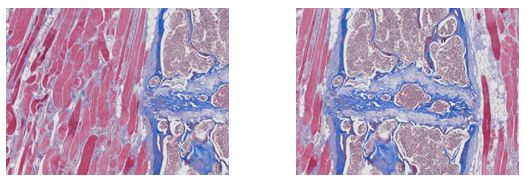 Trichrome stains of collagen and muscle fiber