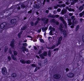 cmu placenta