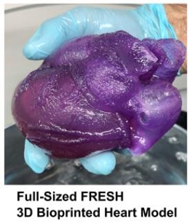 feinberg bioprinted heart model
